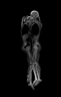 1 | X-Ray Photos Show What Love Looks Like Beneath the Skin | Co.Create | creativity + culture + commerce