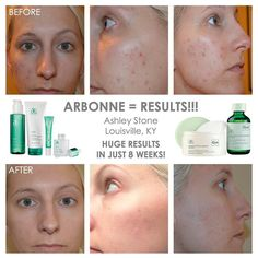 The proof is in the pudding...I mean pictures! Amazing results with Arbonne intelligence Genius resurfacing pads. CID 18550228