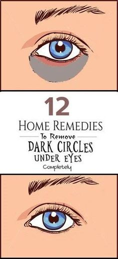 Dark circles under the eyes can happen due to various reasons. Find the best possible way for how to prevent and eliminate