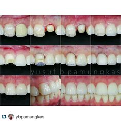 """#Repost @ybpamungkas with @repostapp.  Complete step by step photos of previous case 1. Inappropriate pfm crown on tooth 21 and """"not so good"""" composite veneer on tooth 11 by previous dentist 2. Crown removal using wam key 3. Tooth 21 preparation and ready to take impression 4. Emax crown inserted 5. Tooth 11 direct veneer preparation 6. Palatal shell using CT color 3M z350xt 7. Dentin shade using A1 dentin z350xt  A1 anterior GC G-aenial 8. Enamel shade JE anterior GC G-aenial 9. Polished…"""
