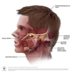 TMJ disorder is caused by a misaligned jaw. Because the jaw is connected muscularly to the neck, shoulders, and head, TMJ pain and Migraine can go hand in hand. TMJ triggered headaches are…More Tension Headache Causes, Tmj Headache, Migraine Pain, Natural Headache Remedies, Chronic Migraines, Migraine Relief, Chronic Pain, Migraine Remedy, Facial Nerve