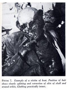 Luftschutzraum in Dresden. Beispiel eines Opfers der Hitze. Position des Haares zeigt deutlich Reißen und Rückzug der Haut vom Schädel und um die Augenhöhlen. Kleidung praktisch unversehrt. Quelle: US War Dept., US Strategic Bombing Survey, S. 17, B. 7.