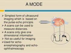 10 D Ultrasound Gynecology Ultrasound Standards Ideas Ultrasound Sonography, 3d Ultrasound, Phased Array, Block Diagram, Image Processing, Sound Waves, Pediatrics, Fashion Styles