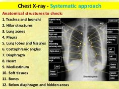 Chest x ray fundamentals Concept Map Nursing, Becoming A Registered Nurse, Silhouette Sign, Cranial Nerves, Internal Medicine, Nurse Practitioner, Radiology, Study Tips, Chemistry