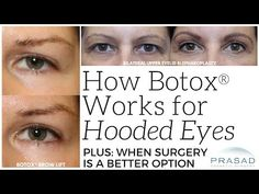 How Botox can Help With Slightly Hooded Eyes, and When Eyelid Surgery is More Appropriate - YouTube Botox Brow Lift, Eyebrow Lift, Eyelid Lift, Hooded Eyelids, Droopy Eyelids, Hooded Eye Surgery, Botox Eyes, Facial Aesthetics, Medical Aesthetics