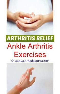Remedies For Arthrtis Home remedy for arthritis in foot.Knitting with rheumatoid arthritis.Are cherries good for arthritis - Arthritis. Rheumatoid Arthritis Medications, Spinal Arthritis, Reactive Arthritis, Arthritis Hands, Yoga For Arthritis, Juvenile Arthritis, Arthritis Exercises, Rheumatoid Arthritis Treatment