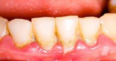 Tome una cucharada diaria y salve sus dientes – Eliminar la placa de una manera muy simple y natural!