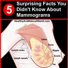 Mammograms are considered the gold standard of screening for breast cancer, but there are are 5 surprising facts about them that most women don't know about.