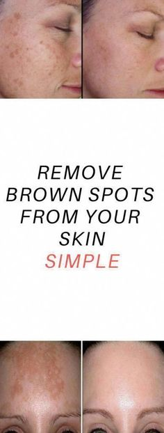 Ways to get Rid Of Brown Spots on Deal with #BrownSpotsOnStainlessSteel #HowToRemoveBrownSpots #BrownSpotsOnFaceItchy #SkinDamageBrownSpots #DeadSeaSaltSkinCare #OldAgeBrownSpots #BrownSkinSpotsOnBody #FaceMolesBrownSpots Spots On Forehead, Brown Spots On Hands, Dark Spots, Skin Moles, Face Moles, Dark Under Eye, Skin Spots, Chemical Peel, Brown Skin