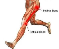 How to Treat and Prevent Iliotibial Band Syndrome
