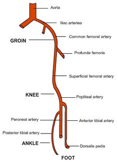 There is an internal and external Iliac artery. The internal iliac artery provides blood to pelvic organs including the urinary bladder. The external iliac artery provides main blood supply to the legs. Cath Lab Nurse, Heart Catheterization, Vascular Ultrasound, Human Body Facts, Interventional Radiology, Medical Humor, Medical School, Anatomy Images, Heart Anatomy