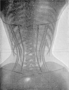X-RAY IMAGES OF CORSETS (1908)