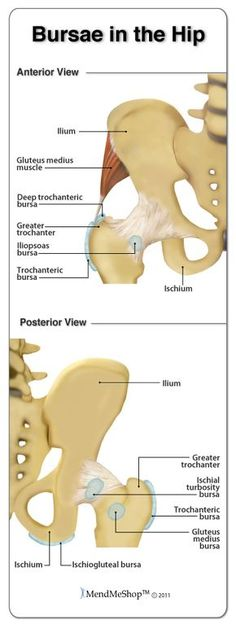Bursae in the Hip. The main bursa in the hip area include the greater trochanteric bursa, deep trochanteric bursa, and the iliopsoas bursa. Hip Joint Anatomy, Muscle Anatomy, Fitness Workouts, Bursitis Hip, Hip Injuries, Human Anatomy And Physiology, Sports Massage, Nursing Notes, Hip Pain