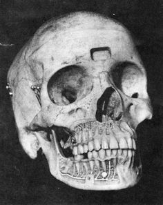Skull reproduction illustrating the nerve supply to the teeth. Medical Plastics Laboratory, Gatesville, Texas