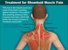 Treatment for Rhomboid Muscle Pain