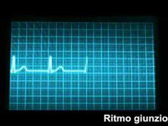 Le Aritmie Cardiache - YouTube