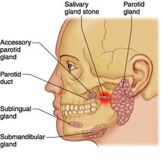 What are salivary gland stones?The chemicals in saliva can sometimes crystallise into a stone that can then block the salivary ducts. Some people form one or more small stones in a salivary gland. This occurs most commonly in people over the age of 40, although it can occur at any age. The reason why a stone forms is not known. A salivary gland stone is sometimes called a sialolith or a salivary calculus. Most salivary stones are mainly made of calcium.