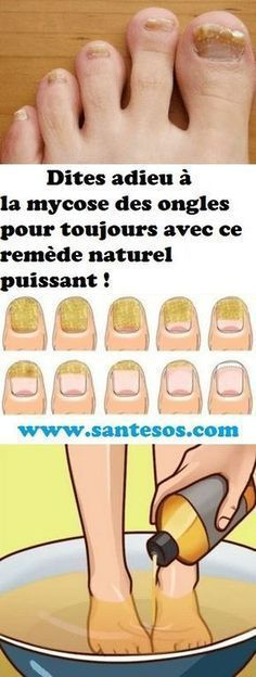 Stop Psoriasis and gain instant relief from the symptoms of Psoriasis Teeth Care, Nail Fungus, Body Treatments, Beauty Care, Beauty Box, Poses, Natural Health, Body Care, Natural Remedies