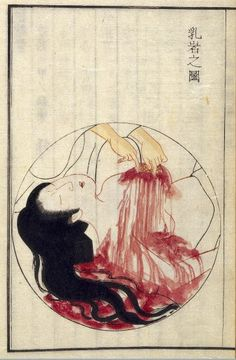 Kamata Keishu, 1851. Excision of a cancerous growth from a woman's breast, an operation which Hanaoka Seishu first carried out in 1804 using general anesthetic.