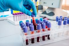 Read about a study suggesting that the severity of pulmonary arterial hypertension may be assessed in the future through a blood test.