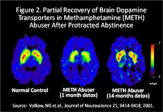 Methamphetamine Addiction: Progress, but Need to Remain Vigilant | National Institute on Drug Abuse