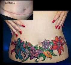 Flowers Tattoo On Stomach to cover a tummy tuck scar..interesting.