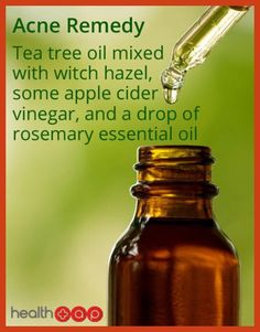Homemade Acne Remedies - Homemade Acne Remedies - Get Rid of Pimples Naturally *** Find out more at the image link. #white