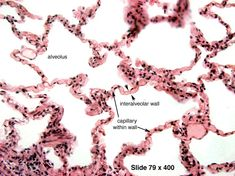 Lung - Alveolar Cells - Histology