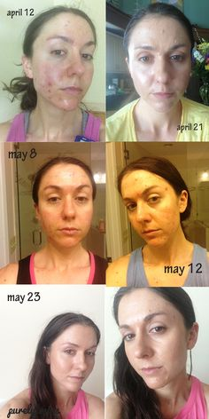 This is the best way to heal acne..they use reputable, well-researched oils and are having amazing results.