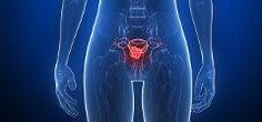 Rakovina maternice