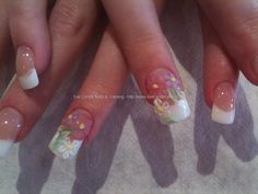 Pink and White overlays with 3D acrylic flower nail art
