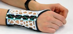 Custom molded 3-d printed wrist braces for arthritis patients Más