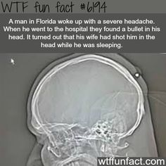Florida man wakes up with a bullet in his head - WTF fun facts. >>> Have a look at even more at the image link Creepy Facts, Wtf Fun Facts, True Facts, Funny Facts, Funny Memes, Random Facts, Random Stuff, Funny Stuff, Strange Facts