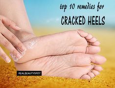 Top 10 Home Remedies for Dry Cracked Heels