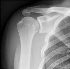 An os acromiale represents an unfused accessory center of ossification of the acromion of the scapula. READ MORE: http://radiopaedia.org/articles/os_acromiale