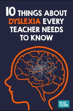 Things About Dyslexia Every Teacher Needs to Know Dyslexia takes different forms, and what works for one child doesn't necessarily work for another.Dyslexia takes different forms, and what works for one child doesn't necessarily work for another. Dyslexia Activities, Dyslexia Strategies, Dyslexia Teaching, Learning Disabilities, Teaching Strategies, Types Of Dyslexia, Learning Resources, Teaching Tips, Learning Support