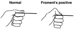 Froment's sign tests for the action of adductor pollicis, which is weak with an ulnar nerve palsy.  With ulnar nerve palsy, the patient will experience difficulty maintaining a hold and will compensate by flexing the FPL (flexor pollicis longus) of the thumb to maintain grip pressure causing a pinching effect.