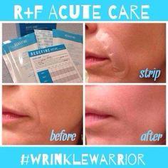 Wrinkle Warrior! Fill a wrinkle while you sleep! Rodan and Fields-- Acute Care Strips aprilsellers.myrandf.com