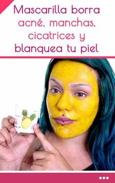 Mascarilla borra acné, manchas, cicatrices y blanquea tu piel
