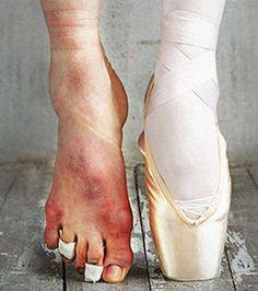 Les pointes des danseuses classiques et leurs pieds abimés