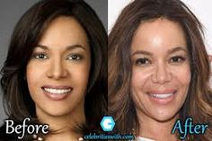 sunny hostin plastic surgery - Google Search