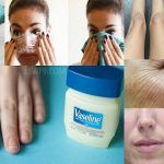 Unbelievable 50 Ways To Use Vaseline In Less Than 2 Minutes