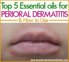 Natural Skin Remedies Natural remedies work very well in getting perioral dermatitis under control. Use one or more of these top 5 essential oils for perioral dermatitis as a quick natural remedy! Essential Oils For Rash, Essential Oil Diffuser Blends, Eczema Remedies, Natural Remedies, Homeopathic Remedies, Health Remedies, Arthritis, Doterra, Lips