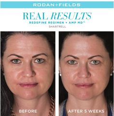 Awesome results after such a short time! #skincare #antiaging #Rodanandfields #wanttotry