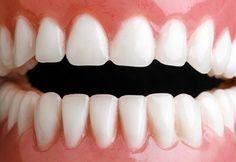 Zbavte se zubního kamene doma - Strana 2 z 2 - Příroda je lék Perfect Teeth, Health Advice, Health Care, Organic Beauty, Natural Health, Health And Beauty, Beauty Hacks, Beauty Tips, Health Fitness