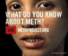 meth mouth - Google Search