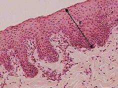 Tecido epitelial de revestimento - Funciona como uma membrana que isola o organismo, ou parte dele, do meio externo. Está relacionado ao revestimento e proteção de superfícies externas (pele) e internas (estômago). Atua, também, na absorção de substâncias, na remoção de impurezas e pode conter vários tipos de receptores sensoriais.