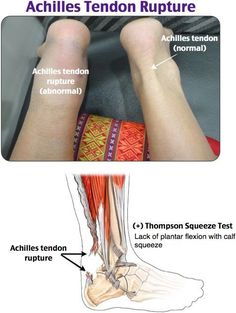 """Achilles Tendon Rupture """"Loud pop"""" normally while exercising. Nursing Notes, Nursing Programs, Tendon Tear, Medical Anatomy, Human Anatomy And Physiology, Body Anatomy, Emergency Medicine, Medical Field, Medical Science"""