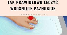 """""""Wrastający paznokieć"""" to najczęściej       używany termin określający stan paznokci zwany onychokryptozą.Problem ten jest bardzo bolesny i dość nieprzyjemny,a dotyczy głównie dużego paznokcia powodując obrzęk i w większości przypadków zakażenie.        Bardzo ważne jest odpowiednie leczenie wrośniętych paznokci,"""