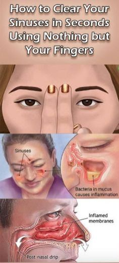 How to get rid of blocked sinuses in seconds.